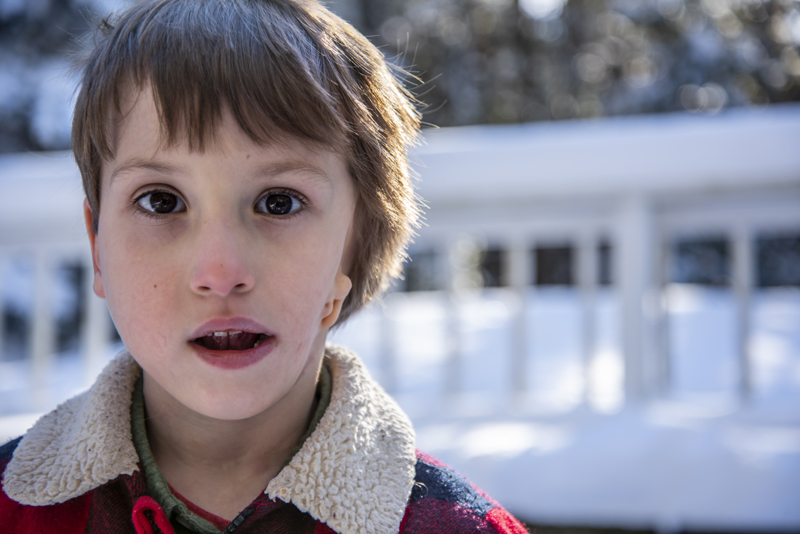Hayden Libby poses for a photo at his home in Waldoboro on Saturday, Dec. 19. Libby was born with hemifacial microsomia, a genetic defect that caused the the left side of his face to be less developed than the right. (Bisi Cameron Yee photo)